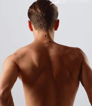 男人脖子后面有痣图片